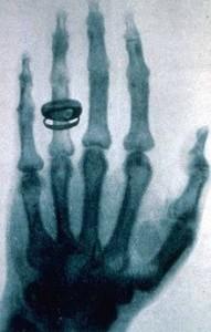 Radiografia della mano della moglie di Albert von Kölliker eseguita da Röntgen.